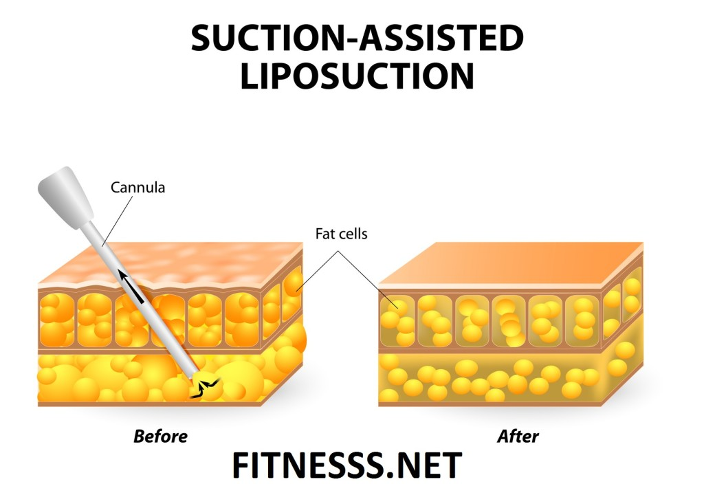 extreme weight loss methods-Liposuction